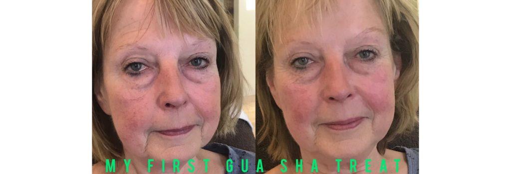 Gua Sha Facial auf diesen Fotos sehen Sie was mit nur einer Behandlung möglich ist