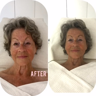 Gua Sha Facial makes the difference!